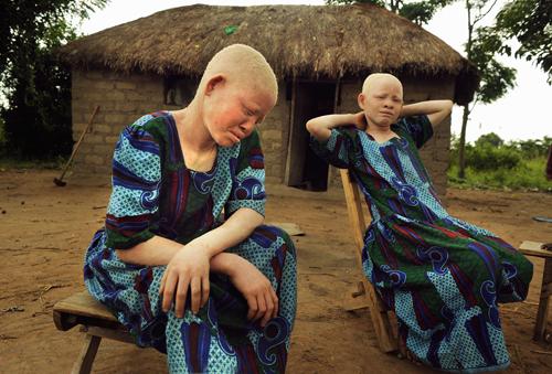 αλμπίνοι στην Τανζανία